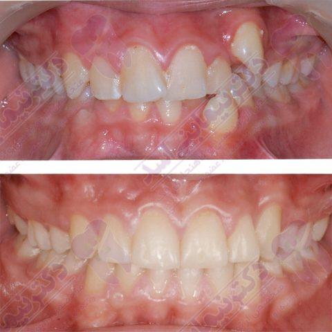 قبل و بعد ارتودنسی - نمونه ارتودنسی ثابت شماره 1