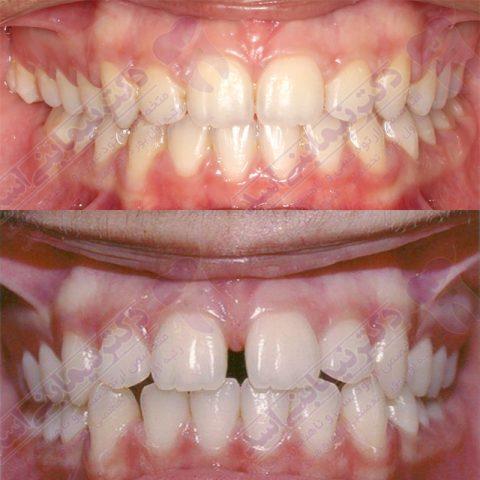 قبل و بعد ارتودنسی - نمونه ارتودنسی ثابت شماره 2