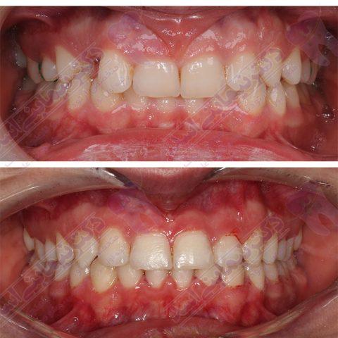 قبل و بعد ارتودنسی - نمونه ارتودنسی ثابت شماره 3