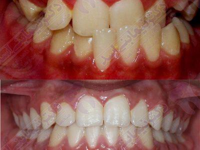 قبل و بعد ارتودنسی - نمونه ارتودنسی ثابت شماره 4