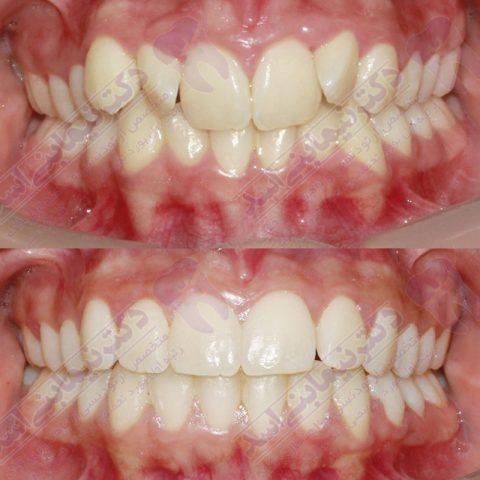 قبل و بعد ارتودنسی - نمونه ارتودنسی ثابت شماره 5