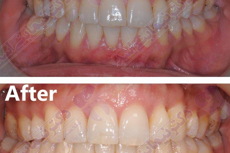 قبل و بعد ارتودنسی - نمونه ارتودنسی ثابت شماره 6