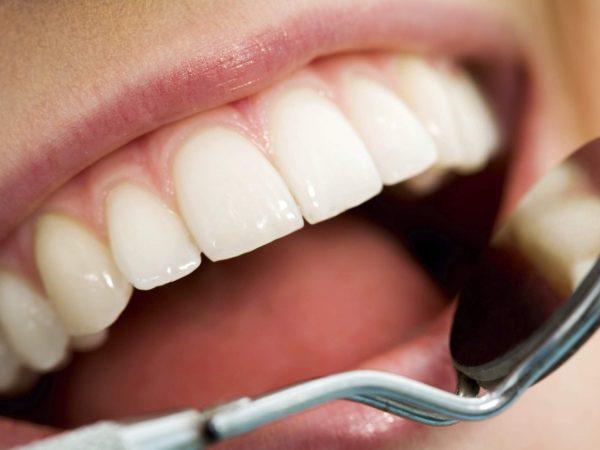 لامینت دندان یا ارتودنسی