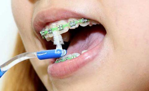رعایت نکات بهداشتی در دندان ارتودنسی شده