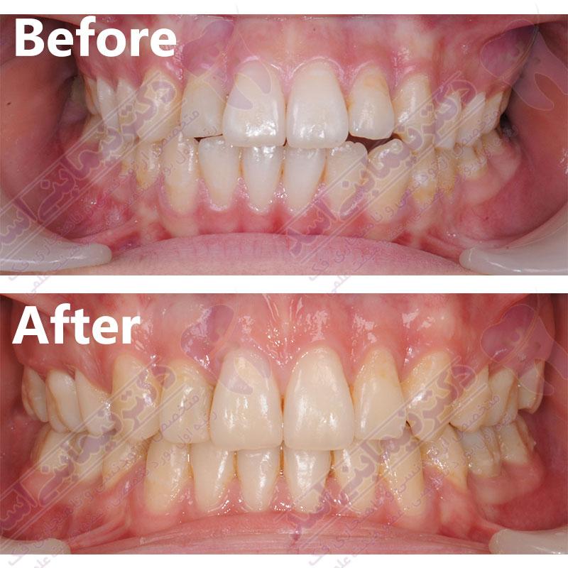 قبل و بعد ارتودنسی - نمونه ارتودنسی ثابت شماره 8