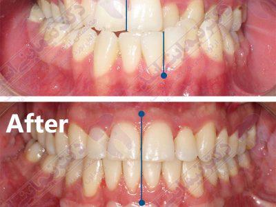 قبل و بعد ارتودنسی - نمونه ارتودنسی ثابت شماره 9