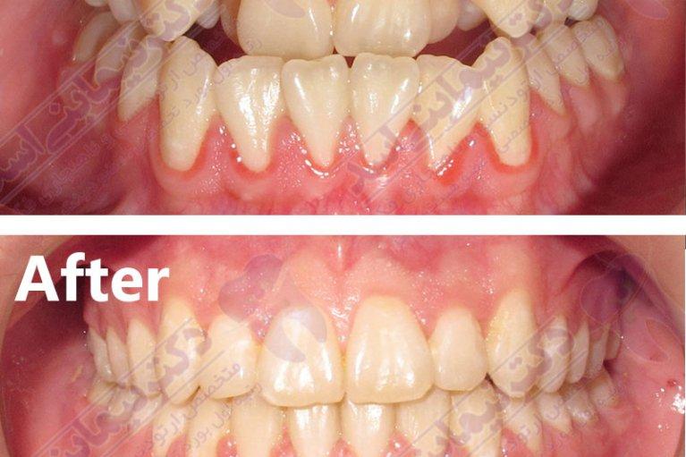 قبل و بعد ارتودنسی - نمونه ارتودنسی ثابت شماره 7