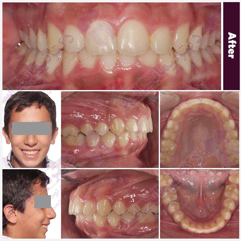 قبل و بعد ارتودنسی - نمونه ارتودنسی ثابت شماره 10