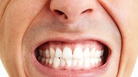 درمان ارتودنسی برای دندان قروچه