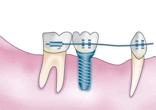 ایمپلنت دندانی و ارتودنسی
