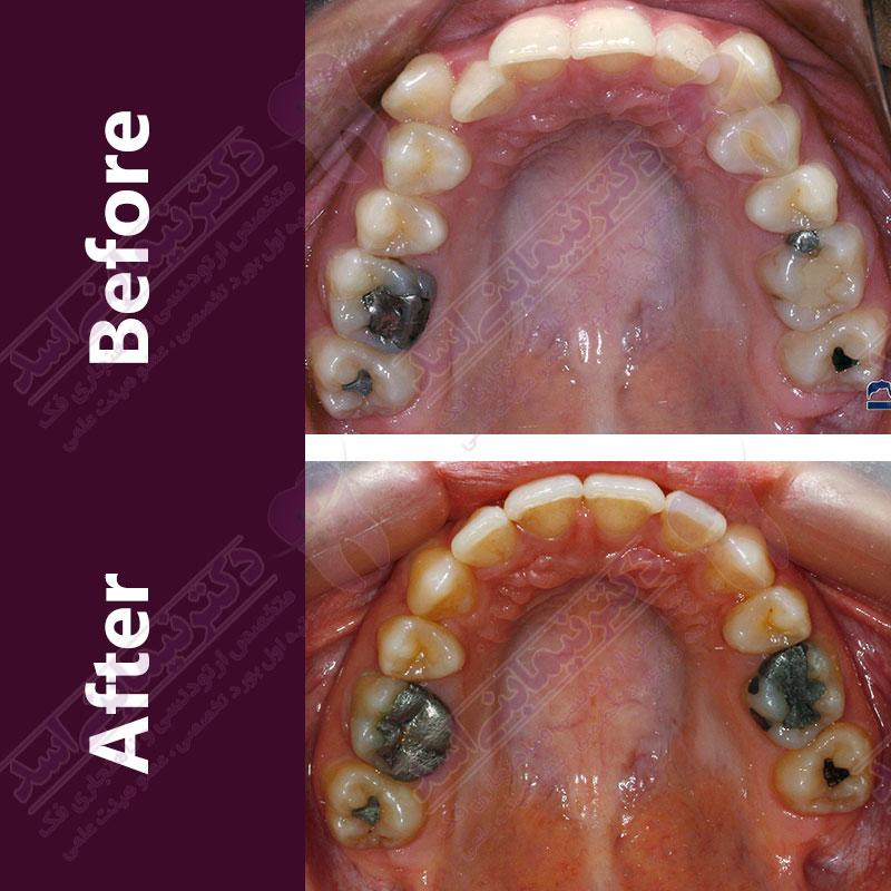 قبل و بعد ارتودنسی – نمونه ارتودنسی ثابت شماره 12