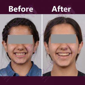 قبل و بعد ارتودنسی – نمونه ارتودنسی ثابت شماره 11