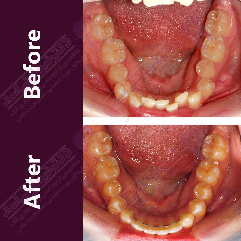 قبل و بعد ارتودنسی – نمونه ارتودنسی ثابت شماره 13
