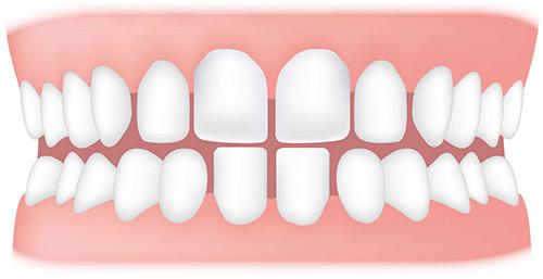دلیل فضای خالی بین دندان ها