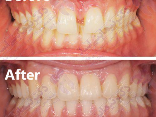 قبل و بعد ارتودنسی – نمونه ارتودنسی ثابت شماره 15