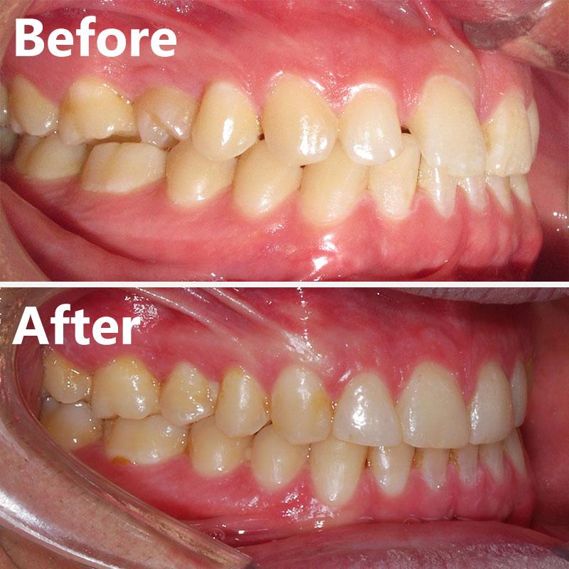 قبل و بعد ارتودنسی – نمونه ارتودنسی ثابت شماره 16