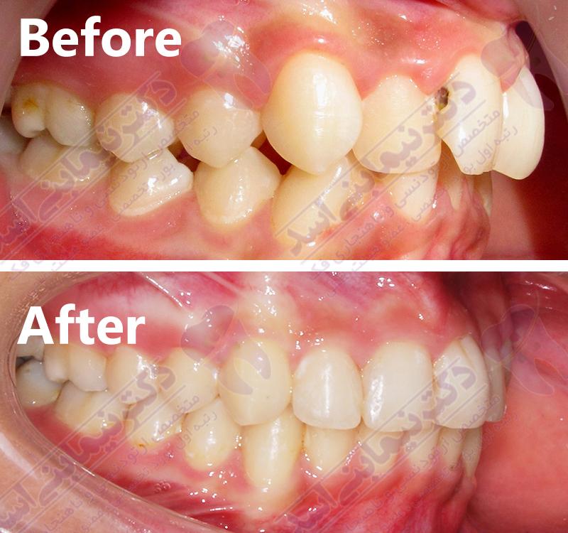 قبل و بعد ارتودنسی – نمونه ارتودنسی ثابت شماره 14