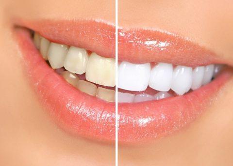 بررسی دردهای ناشی از سفید کردن دندان