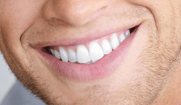 آنالیز لبخند در دندانپزشکی