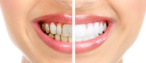 آیا دندان شما آسیب دیده است؟