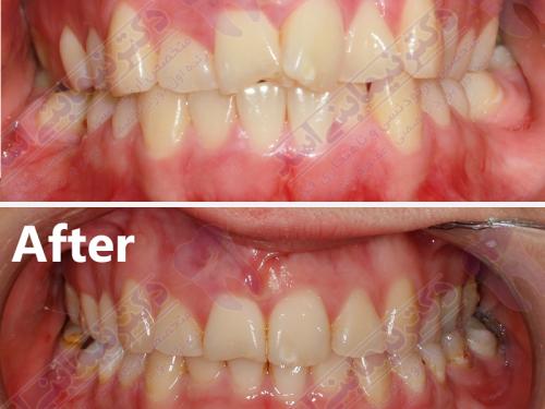 قبل و بعد ارتودنسی – نمونه ارتودنسی ثابت شماره 17
