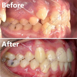 قبل و بعد ارتودنسی – نمونه ارتودنسی ثابت شماره 19