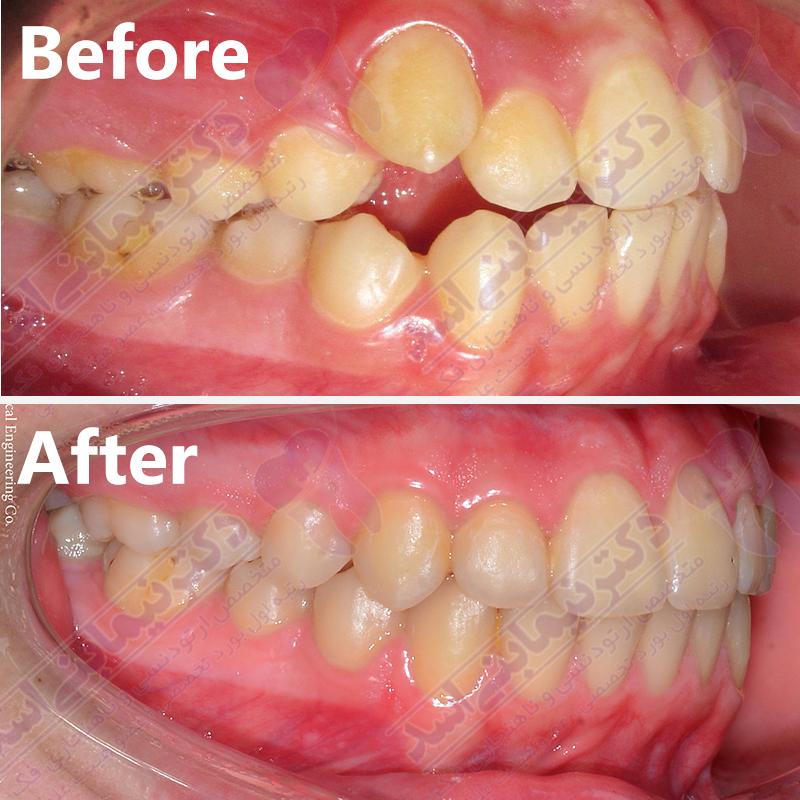 قبل و بعد ارتودنسی – نمونه ارتودنسی ثابت شماره 20