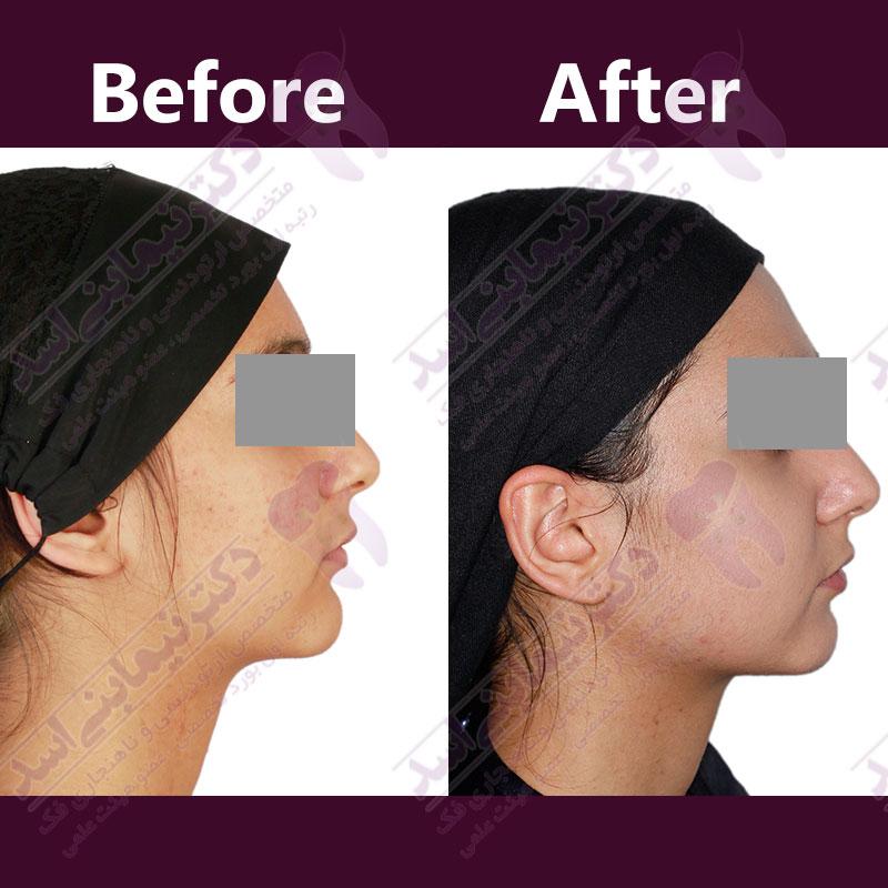قبل و بعد ارتودنسی – نمونه ارتودنسی ثابت شماره 18