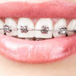 مراقبت از سیم های دندانی