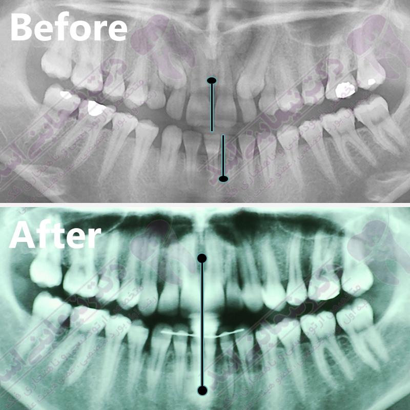 قبل و بعد ارتودنسی – نمونه ارتودنسی ثابت شماره 22