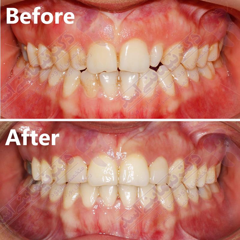 قبل و بعد ارتودنسی – نمونه ارتودنسی ثابت شماره 23