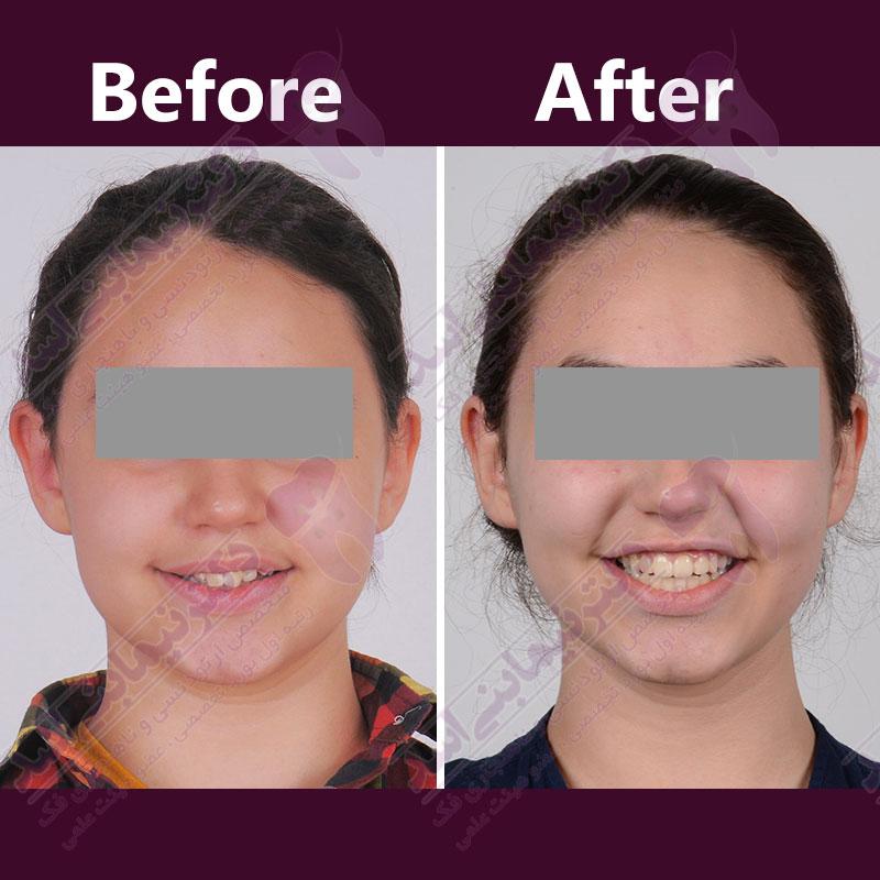 قبل و بعد ارتودنسی – نمونه ارتودنسی ثابت شماره 21