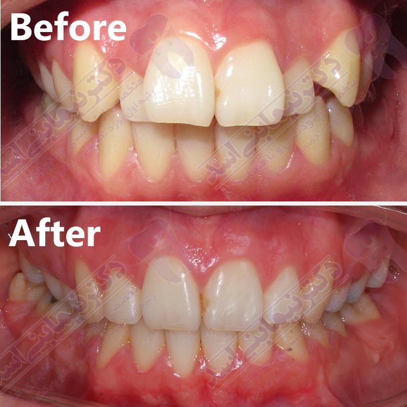 قبل و بعد ارتودنسی – نمونه ارتودنسی متخصص