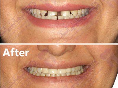 قبل و بعد ارتودنسی – نمونه ارتودنسی ثابت متخصص