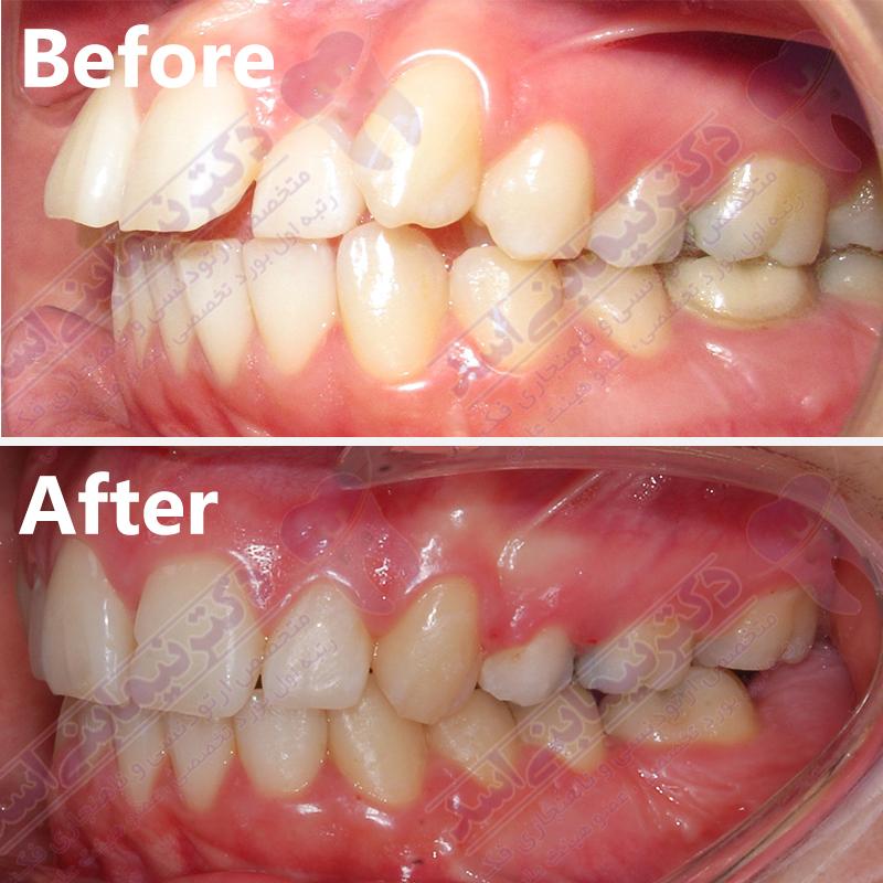 قبل و بعد ارتودنسی – نمونه ارتودنسی ثابت شماره 24