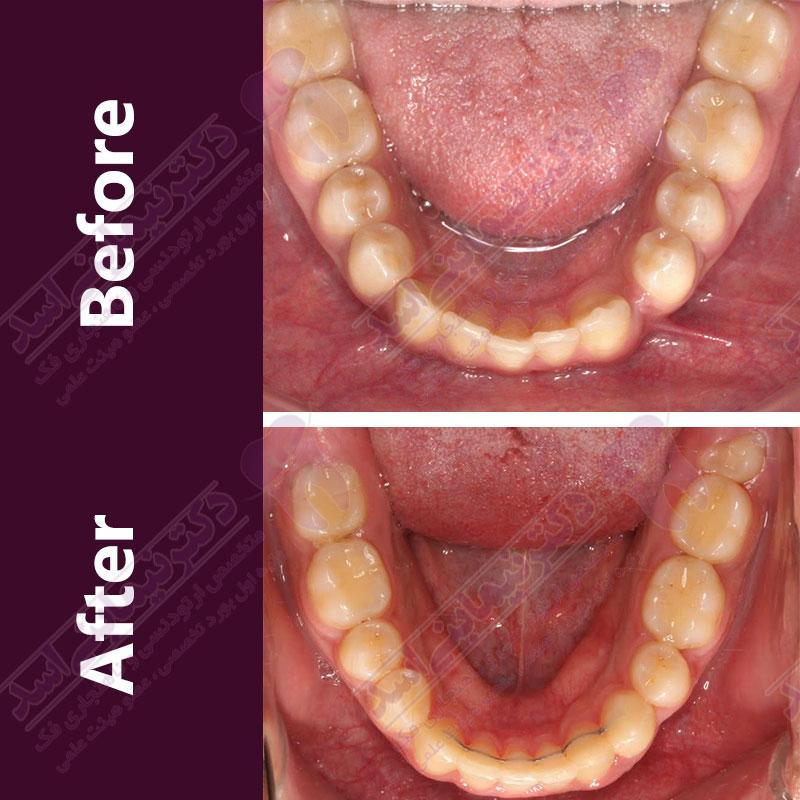قبل و بعد ارتودنسی – نمونه ارتودنسی ثابت شماره ۲۶