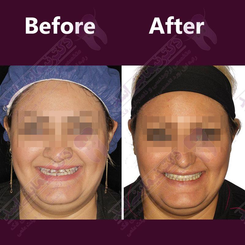 قبل و بعد ارتودنسی – نمونه ارتودنسی ثابت شماره 25