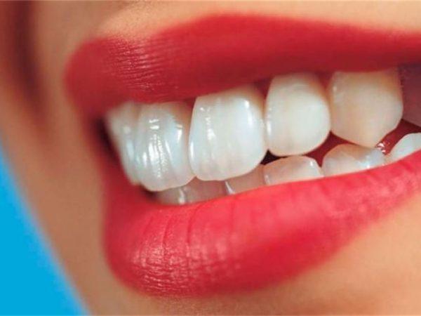 رویاندن دندان سانترال