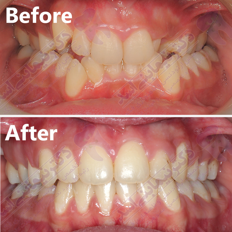 قبل و بعد ارتودنسی – دکتر متخصص ارتودنسی