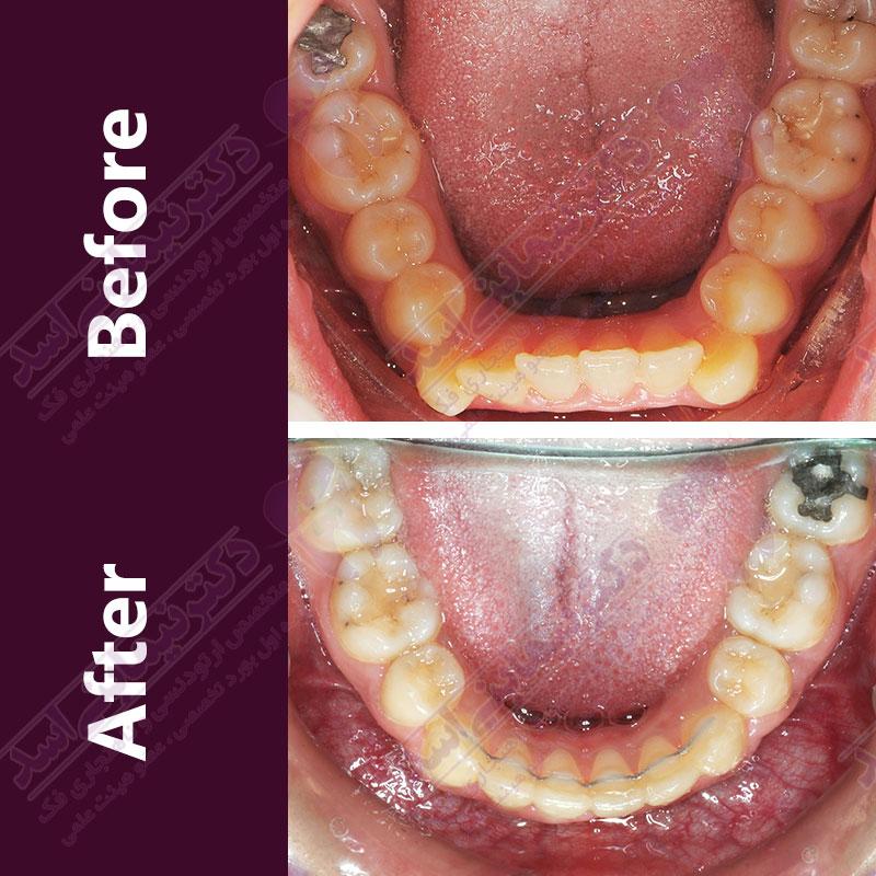 قبل و بعد ارتودنسی – نمونه ارتودنسی ثابت شماره ۲۷