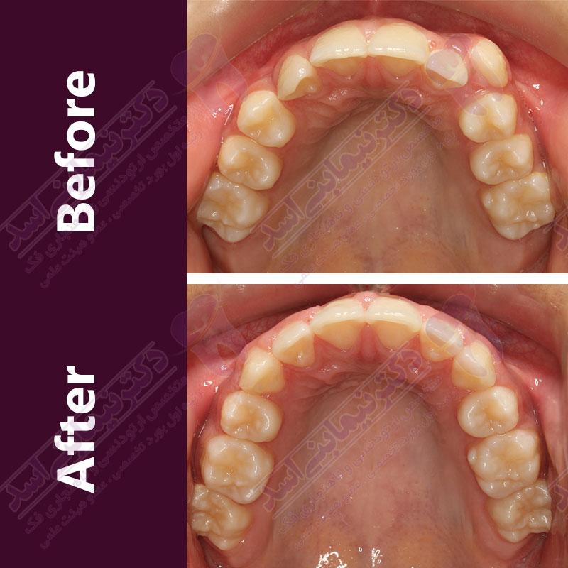 قبل و بعد ارتودنسی – نمونه ارتودنسی ثابت شماره ۲۸