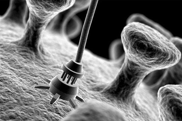 تغییر روش جراحی دهان با فناوری نانو