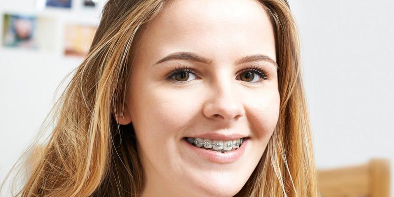 مراقبت از سلامت لبخند در هنگام استفاه از براکت