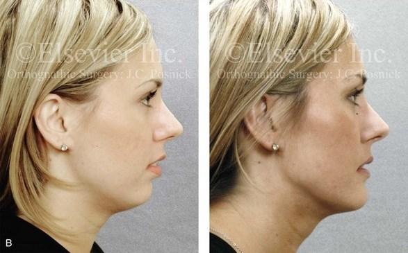 تأثیر ارتودنسی بر بینی