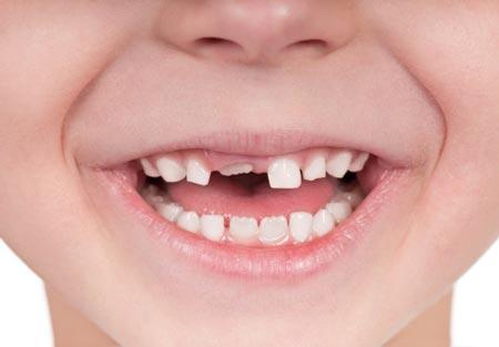 دوره تکامل دندانی از حین تولد تا 18 سالگی