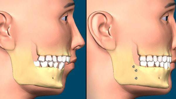 انواع درمان های ارتودنسی جهت اصلاح فک و صورت